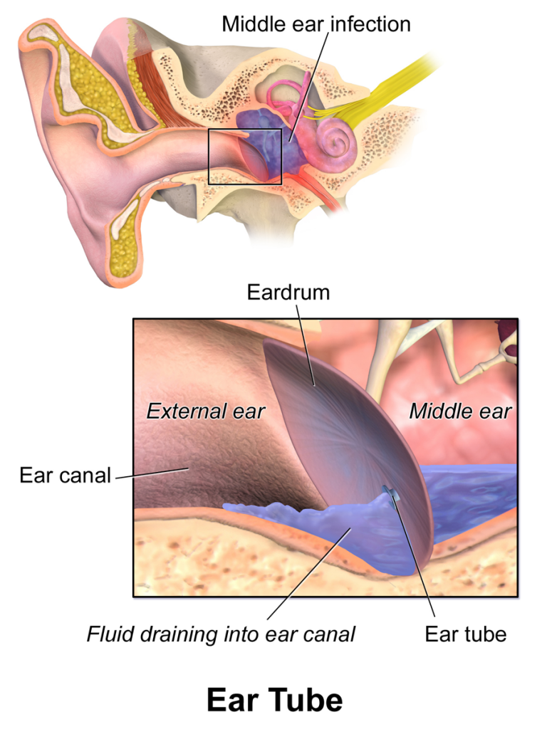 Managing Middle Ear Fluid In Adults Tinnitus Treatment